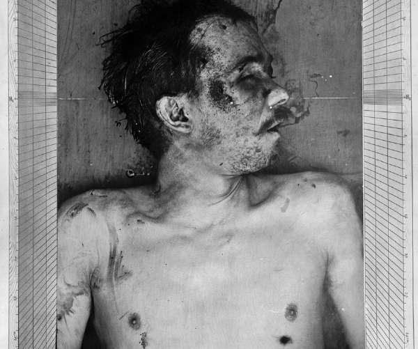 Εδώ διακρίνουμε καθαρά δύο τρύπες από σφαίρες στο σώμα του Jules Bonnot: μία στο δεξί κρόταφο, η άλλη κάτω από τον αριστερό μαστό.