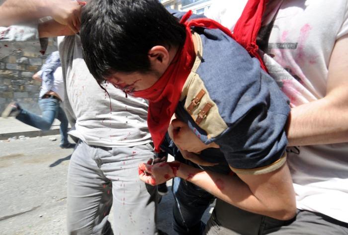 Ένας αιμόφυρτος διαδηλωτής επικουρείται καθώς διαδηλωτές συγκρούονται με την αστυνομία την 1η Ιουνίου 2013, στην Κωνσταντινούπολη. (Bulent Kilic / AFP / Getty Images)
