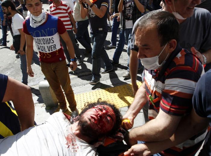 Ένας τραυματισμένος διαδηλωτής μεταφέρεται σε ασθενοφόρο κατά τη διάρκεια συγκρούσεων με την αστυνομία στην Άγκυρα, στις 1 Ιουνίου, 2013. (Reuters / Umit Bektas)