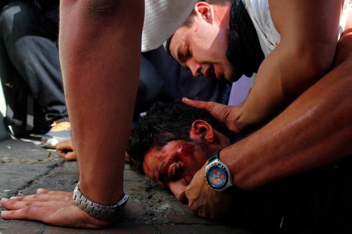 A fallen protester receives help after gun shots were heard during an anti-government rally in Caracas
