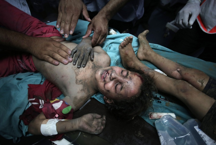Ένα μικρό κορίτσι έχει μεταφερθεί τραυματισμένο και σε κατάσταση σοκ στο νοσοκομείο Αλ Σίφα